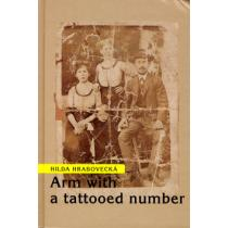 Arm with a tattooed number